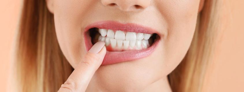 Zahnfleischrückgang - die wesentlichen Ursachen und Symptome