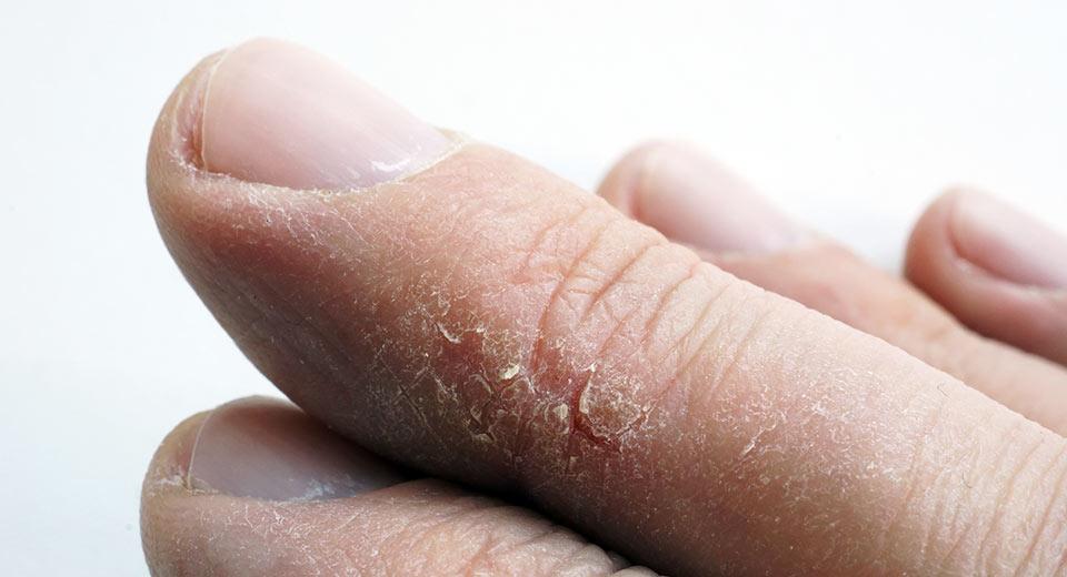 Trockene Haut und schmerzhafte Risse am Finger
